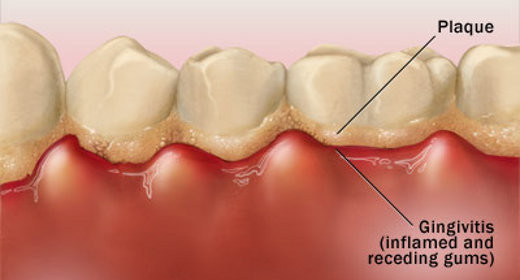Dental Plaque Linked to Cancer Risk