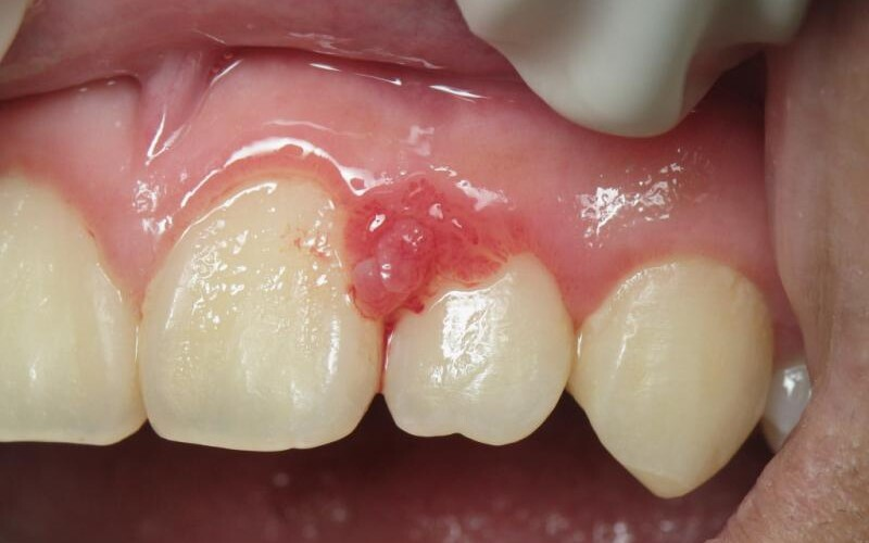 Recognizing and Treating Gingivitis