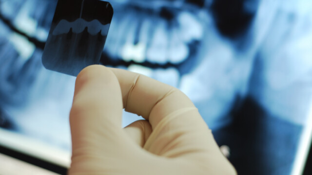 What You Need to Know About Dental X-rays