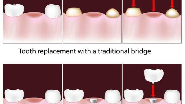 Tooth Replacement Options: Dental Implants, Bridges, and Dentures