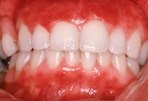 Gum Disease: An All-Too-Common Problem