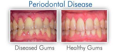 Understanding Periodontitis: A Progressive Form of Gum Disease