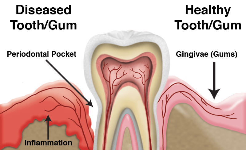 Treating Gum Disease
