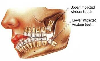 Why Do We Have Wisdom Teeth?